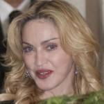 Viele haben keine, manche haben Blech- und Madonna hat GOLD-Zähne!