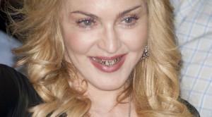 Madonna_Goldzähne